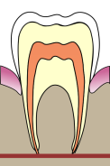 397px-cavities_evolution_1-svg